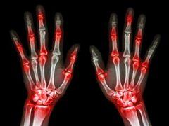 artrite-reumatoide-nas-maos-1