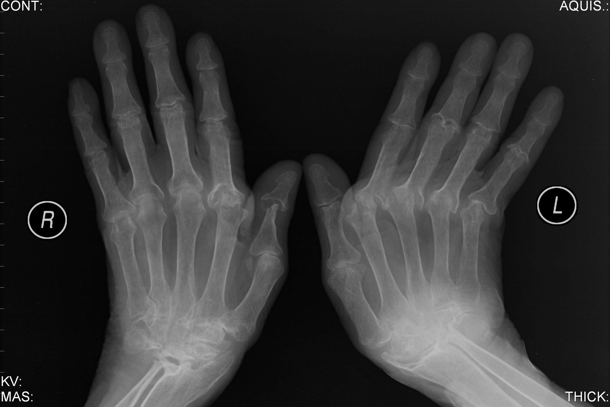 Reumatologista explica diferença entre artrite e artrose