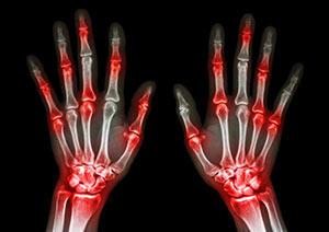 Chegamos na semana da nossa X Jornada Mineira de Reumatologia
