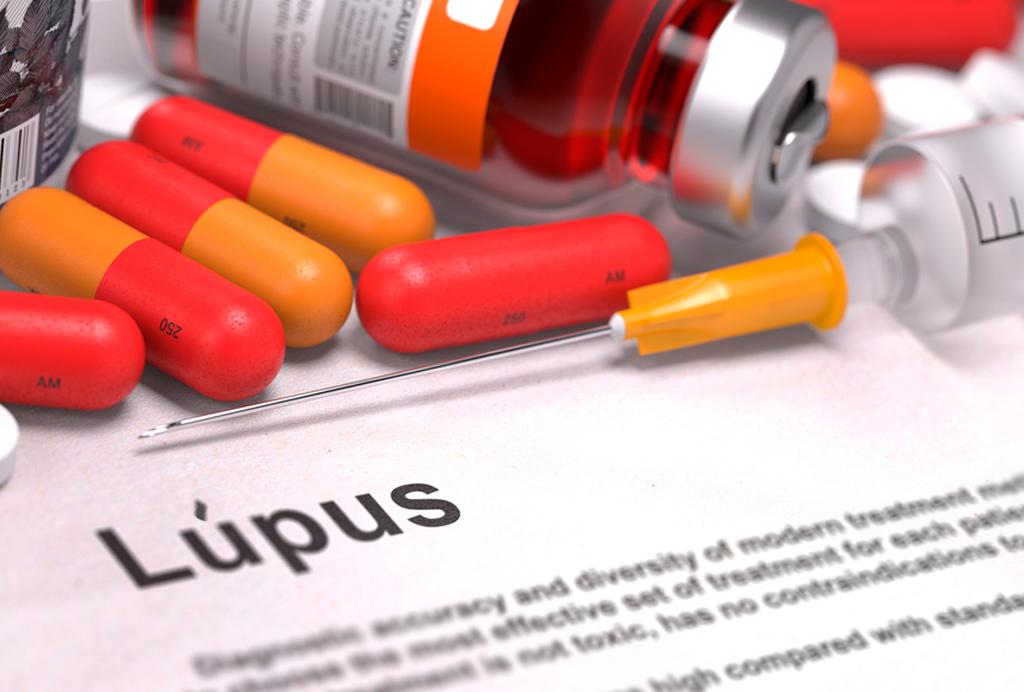 tratamento lupus
