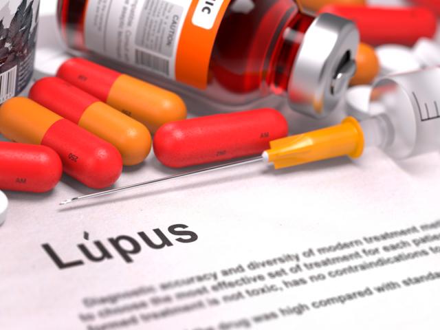 Tratamento de Lúpus