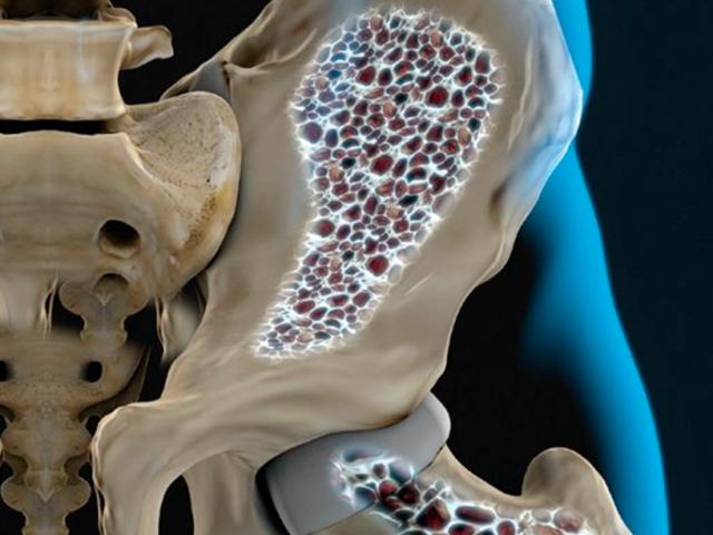 7 fatores de risco para osteoporose