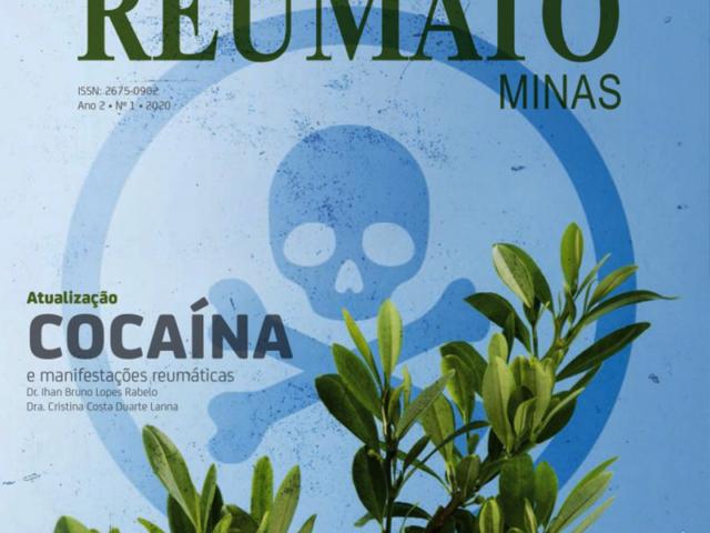 Revista Reumatominas – Ano 2 Nº1 2020